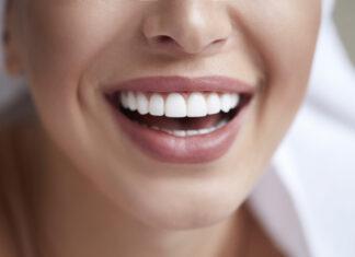Wybielanie zębów - metody